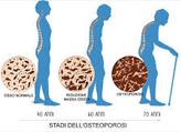 SCREENING OSTEOPOROSI